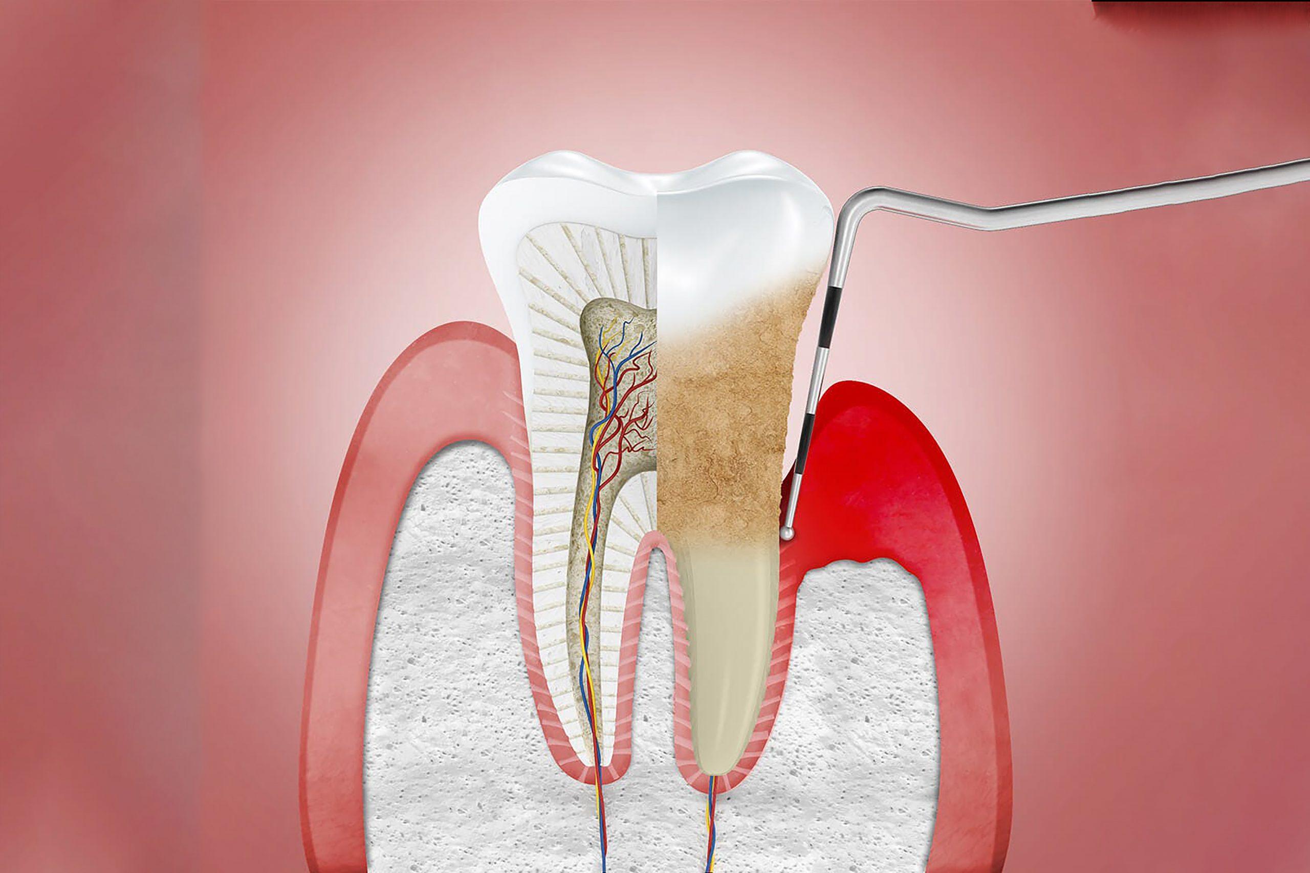 Periodontitis Treatment at Stillwater Dental