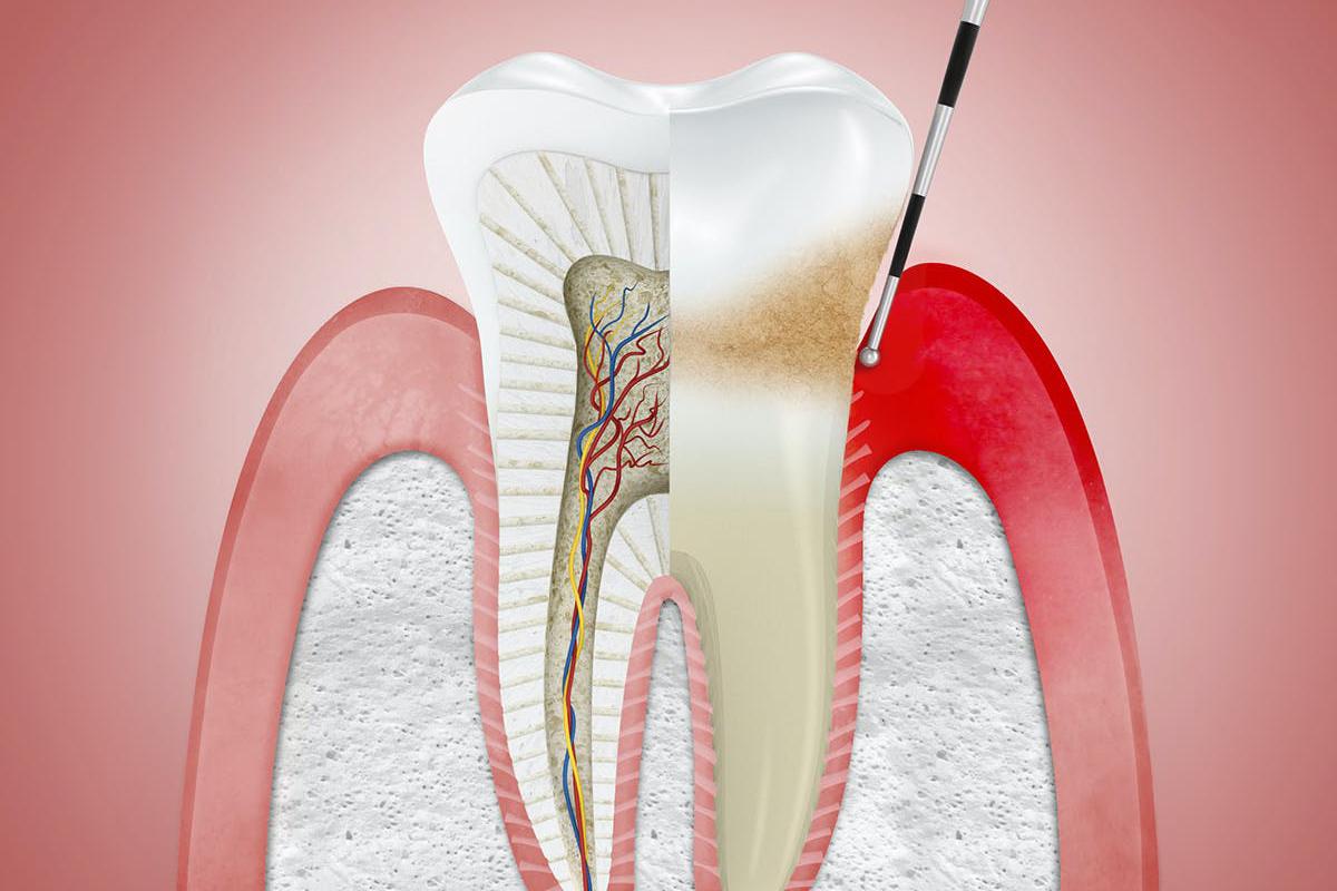 Gingivitis Treatment at Stillwater Dental