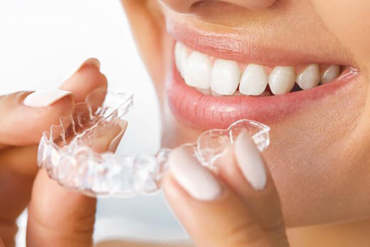 Invisalign Available at Stillwater Dental