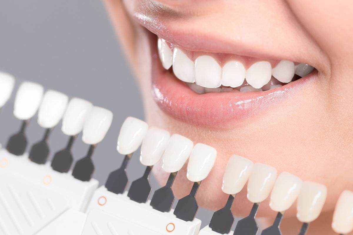 Teeth Whitening at Stillwater Dental