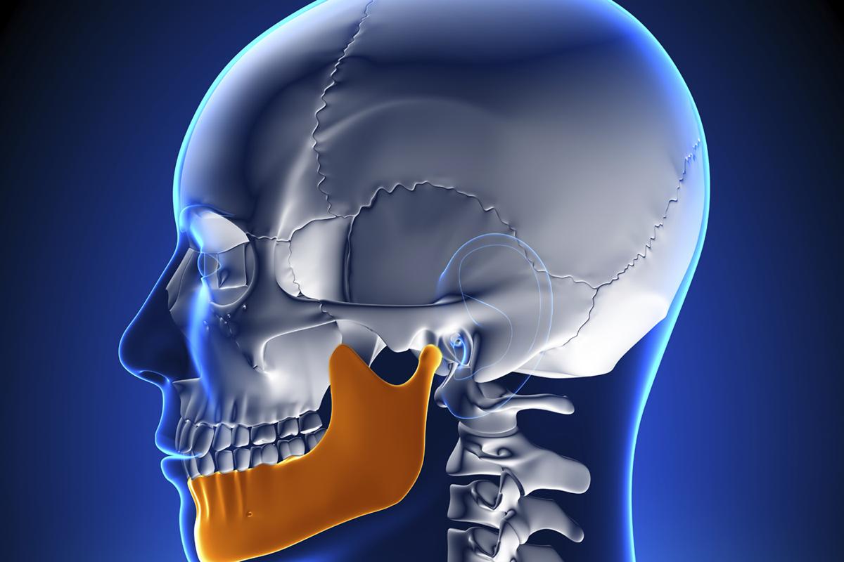 Temporomandibular Disease (TMJ)