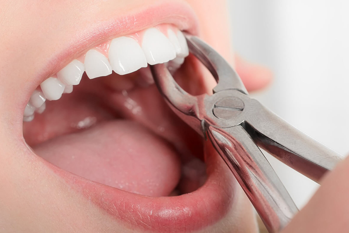 Tooth Extractions at Stillwater Dental