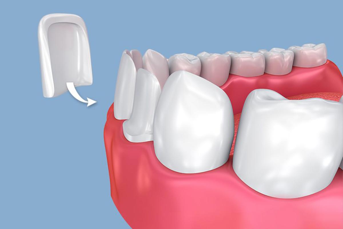Dental Veneers at Stillwater Dental