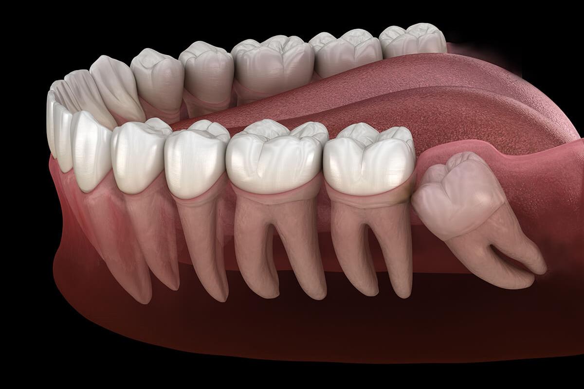 Wisdom Teeth Extraction at Stillwater Dental